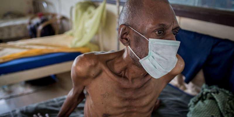 Uganda, Tanzania & Kenya launch project to kick TB out of ...