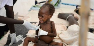 A 16-month-old South Sudanese boy, suffering from severe malnutrition, sits